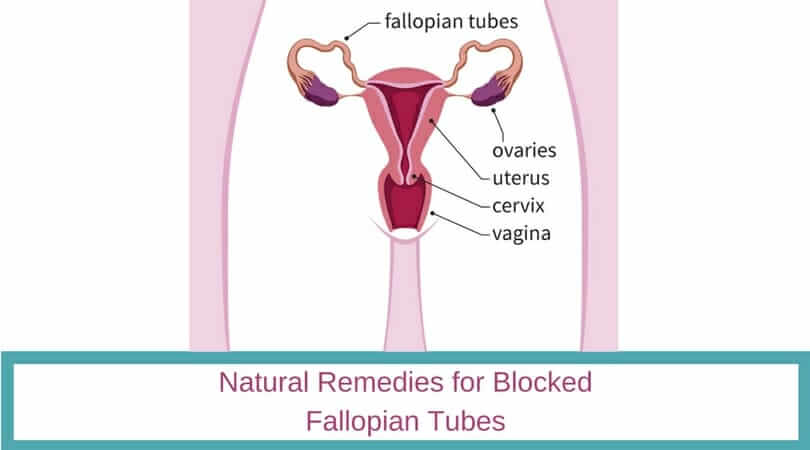 Natural Remedies for Blocked Fallopian Tubes